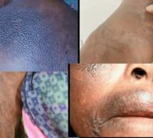 Lutte contre le xessal (dépigmentation de la peau) : un combat perdu d'avance